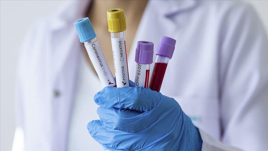 Özel sağlık sigortalarından koronavirüsü kapsama alma kararı