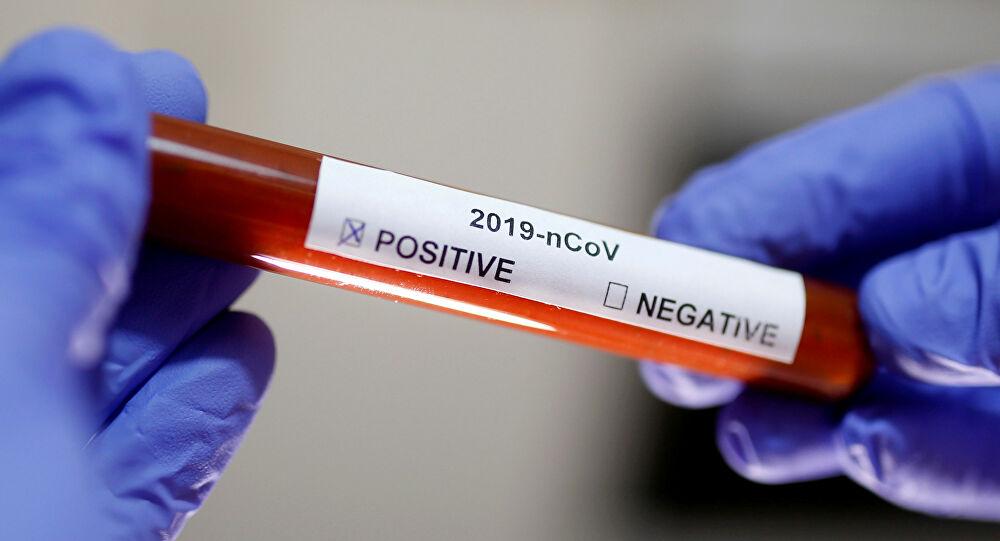 İmmün plazma tedavisi uygulanan koronavirüs hastasıyla ilgili yeni gelişme